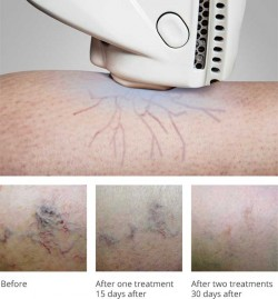 exotherme-laser-before-after-spider-veins